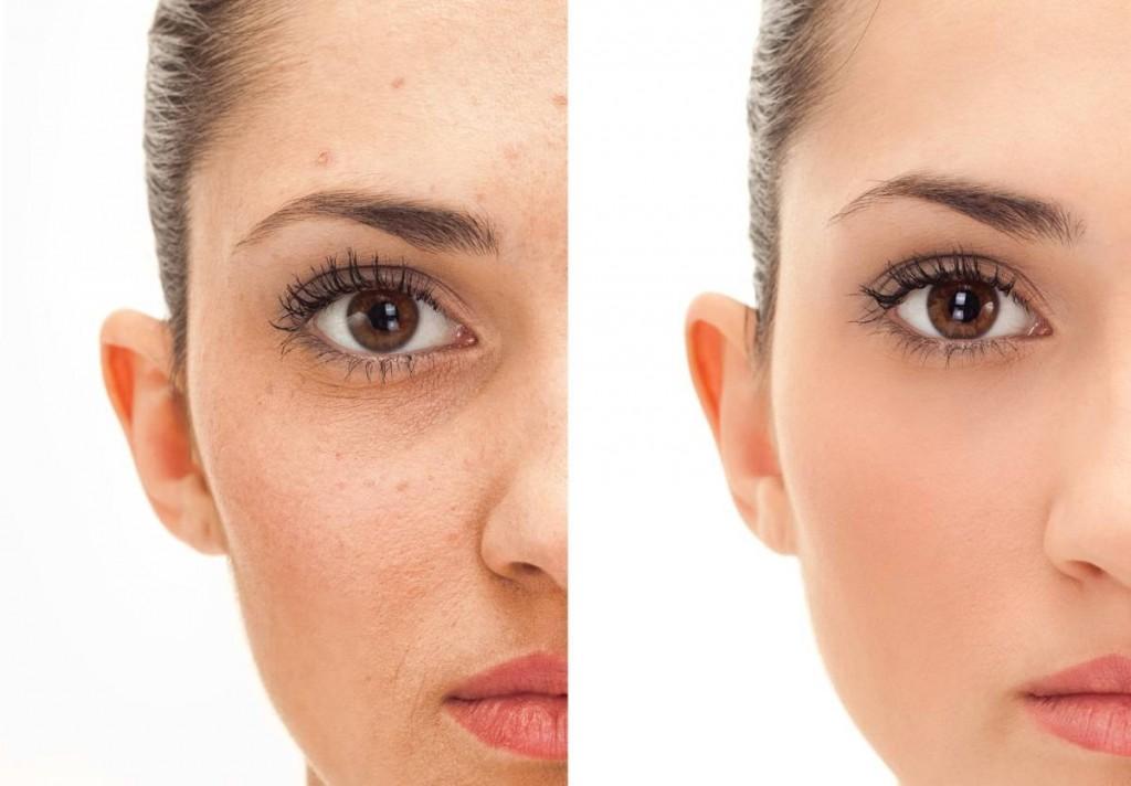 microdermoabraziune-faciala-free-style-salon-salon-cosmetica-bucuresti